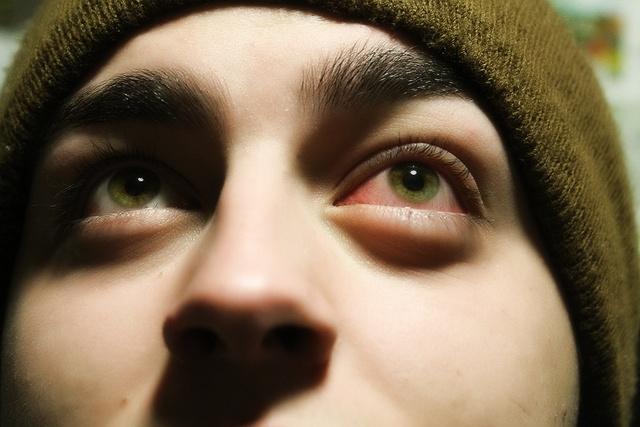 Почему колит глаз