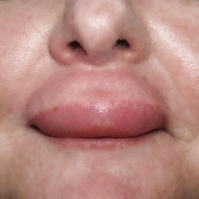 Опухла губа - что это может быть? Основные причины