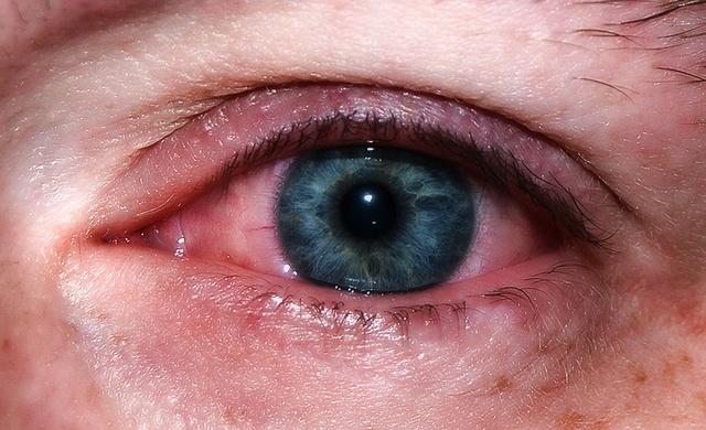 Почему утром красные белки глаз