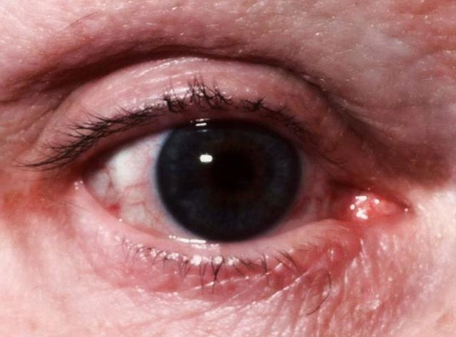 Болят уголки глаз