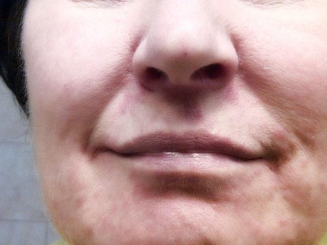Шелушение вокруг рта у взрослого