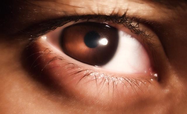 Красные пятна под глазами у взрослых