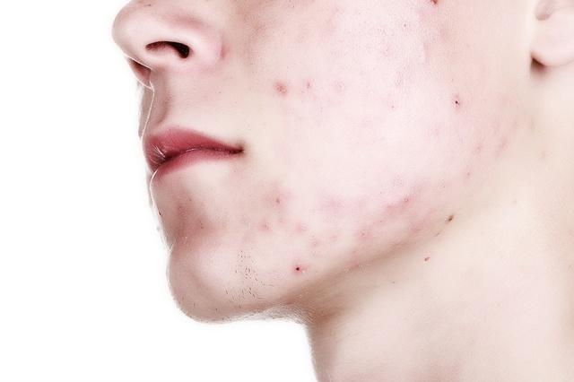 Сыпь под губой у взрослого фото