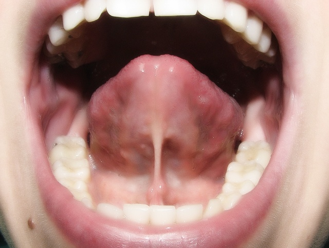 Появление воспаления под языком имеет признаки болезни требующей лечения