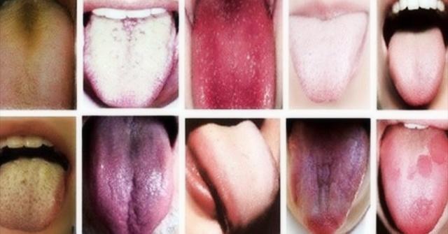 Красные, белые и другие пятна на языке у взрослых и детей: причины и последствия, профилактика и лечение