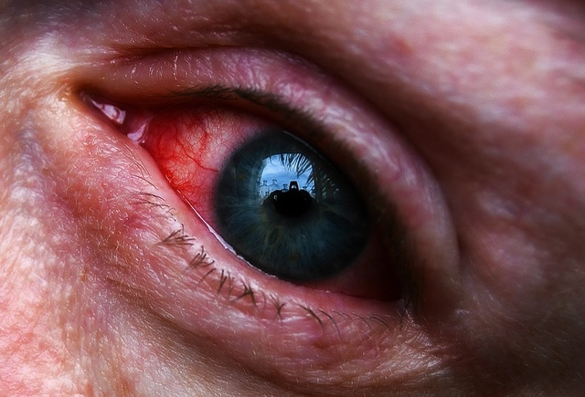 Красные веки глаз: причины у взрослого