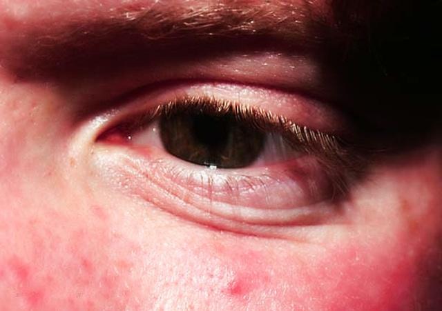Сыпь под глазами опухло