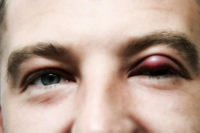 Красные прыщики вокруг глаз что это