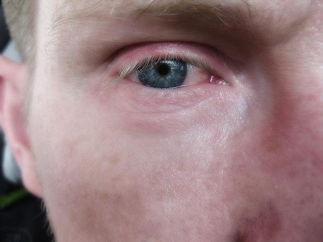 Красные круги под глазами у взрослого: причины