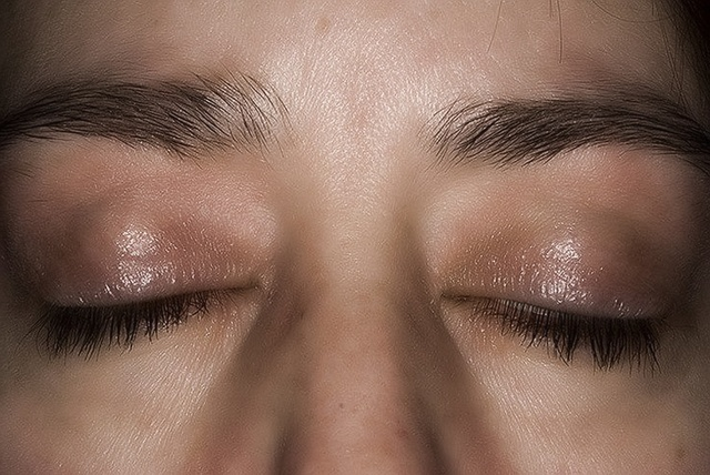 Над глазом желтое пятно лечение