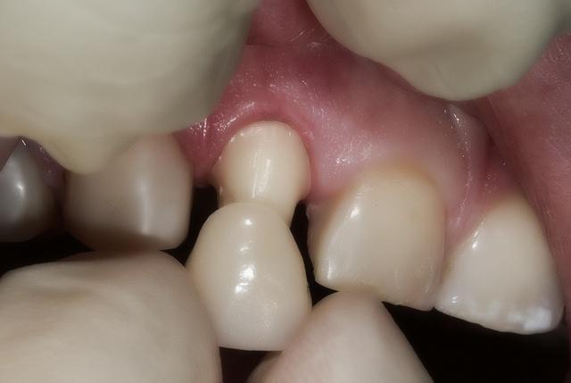 Темное пятно на десне около зуба — Зубы