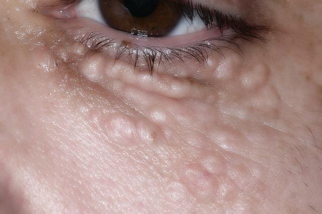 Жировик на белке глаза как избавиться