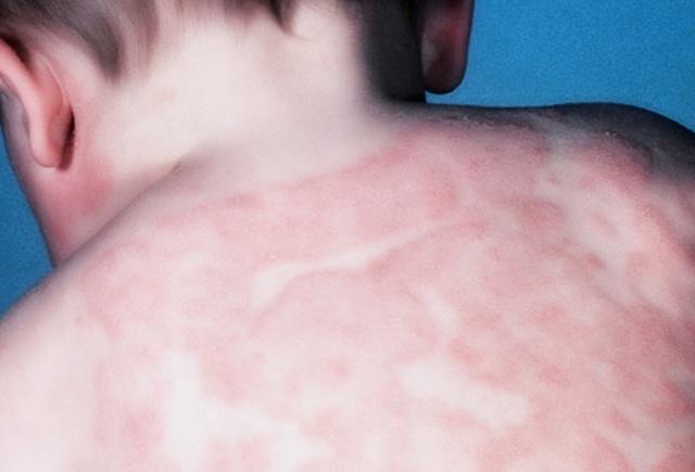 Атопический дерматит у детей лечение гомеопатией препараты thumbnail